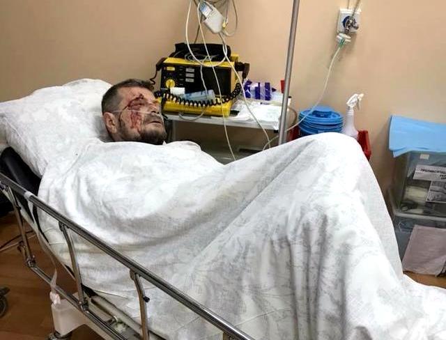 Нардеп Ігор Мосійчук постраждав від замаху